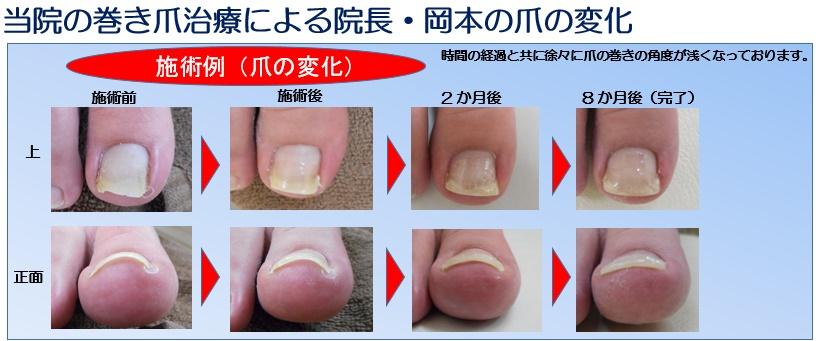 当院の巻き爪治療による院長・岡本の爪の変化